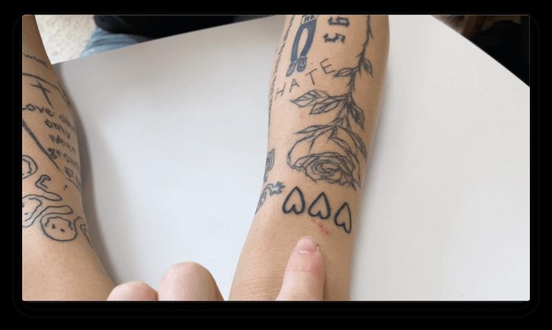 タトゥーの肌荒れ